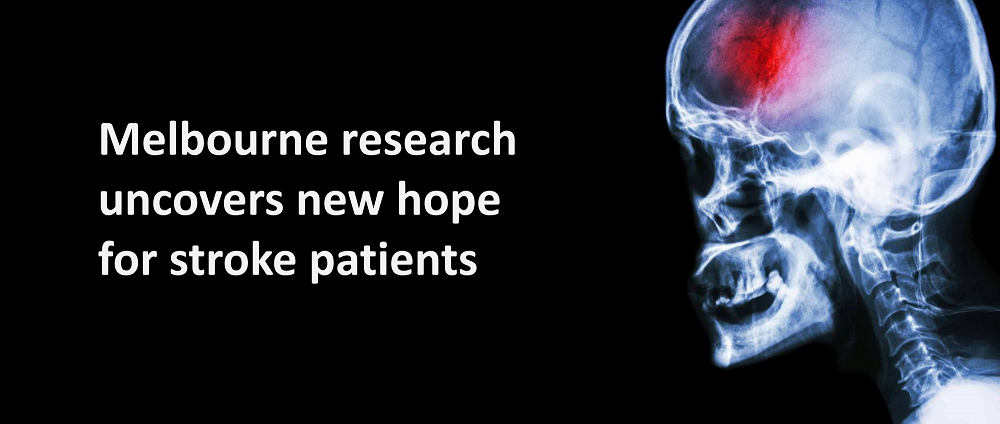 A significantly improved treatment for Stroke